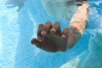 Liệu pháp ôxy làm giảm tổn thương não ở trẻ bị đuối nước